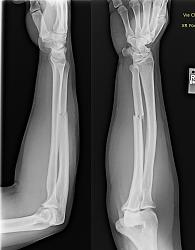 Lathe whipping accident - video and image-broken-arm1.jpg